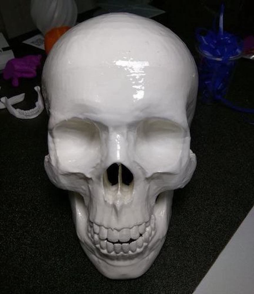 Medical reprint of skull from CT scans